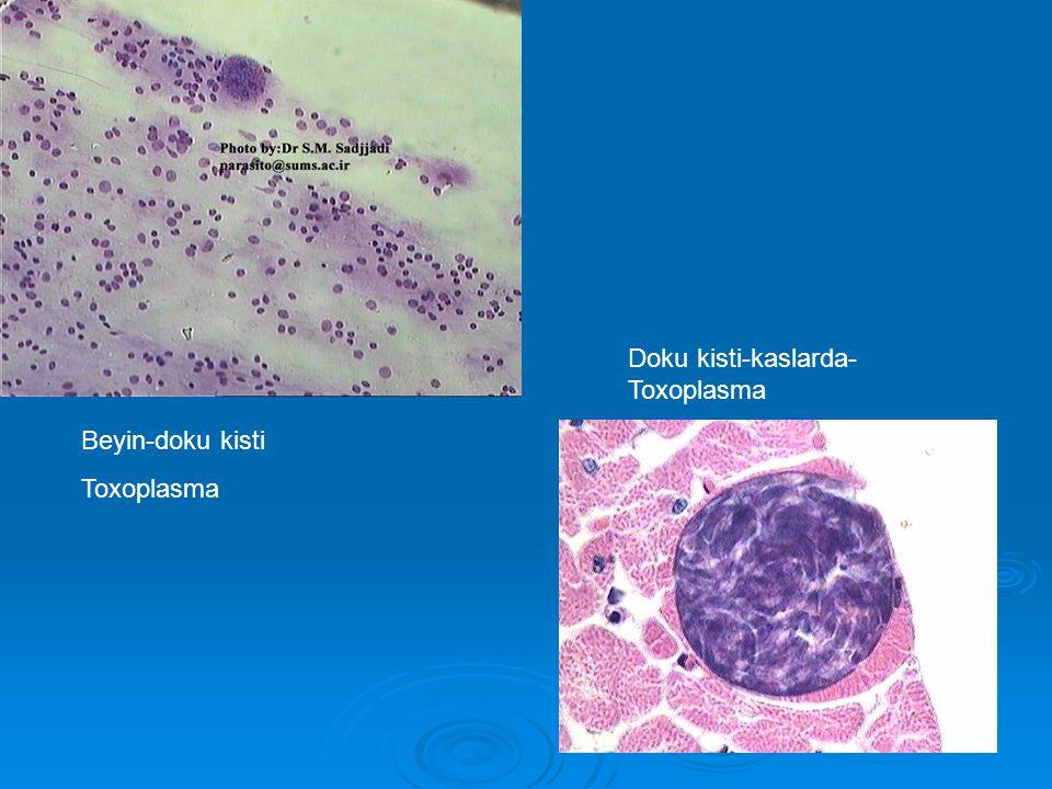 Beyin-doku kisti Toxoplasma Doku kisti-kaslarda- Toxoplasma