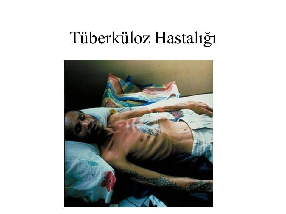 Tüberküloz Hastalığı