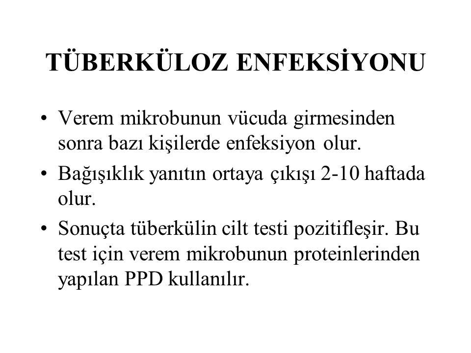 KURUMLARDA TB BULAŞMASININ ÖNLENMESİ