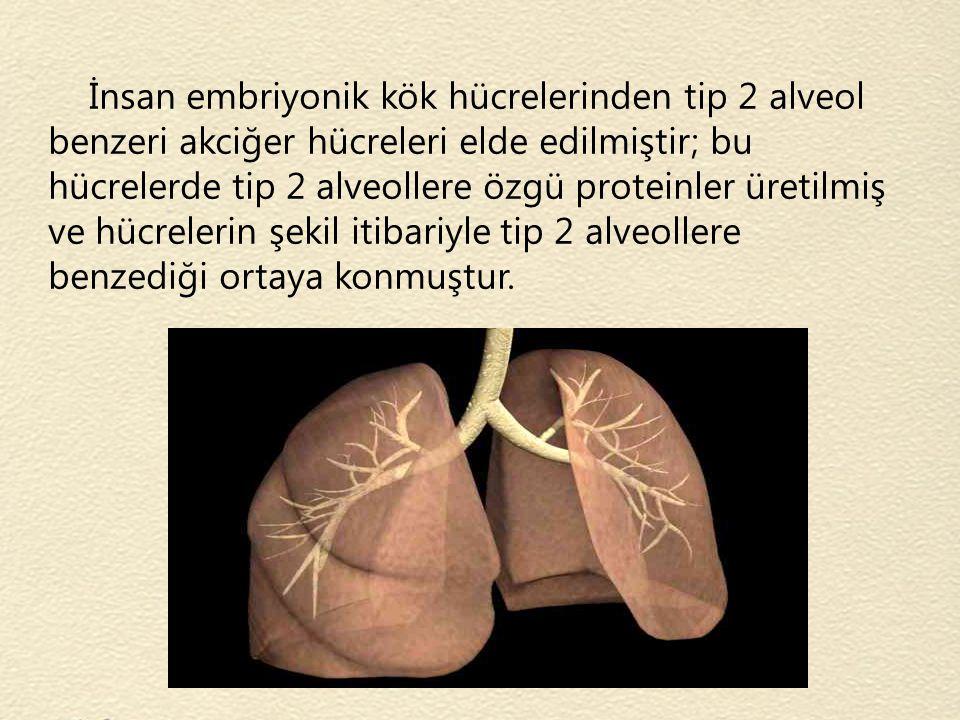 İnsan embriyonik kök hücrelerinden tip 2 alveol benzeri akciğer hücreleri elde edilmiştir; bu hücrelerde tip 2 alveollere özgü proteinler üretilmiş ve