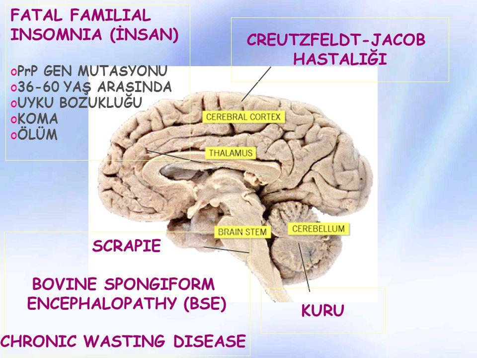 KURU SCRAPIE BOVINE SPONGIFORM ENCEPHALOPATHY (BSE) CHRONIC WASTING DISEASE FATAL FAMILIAL INSOMNIA (İNSAN) oPrP GEN MUTASYONU o36-60 YAŞ ARASINDA oUY
