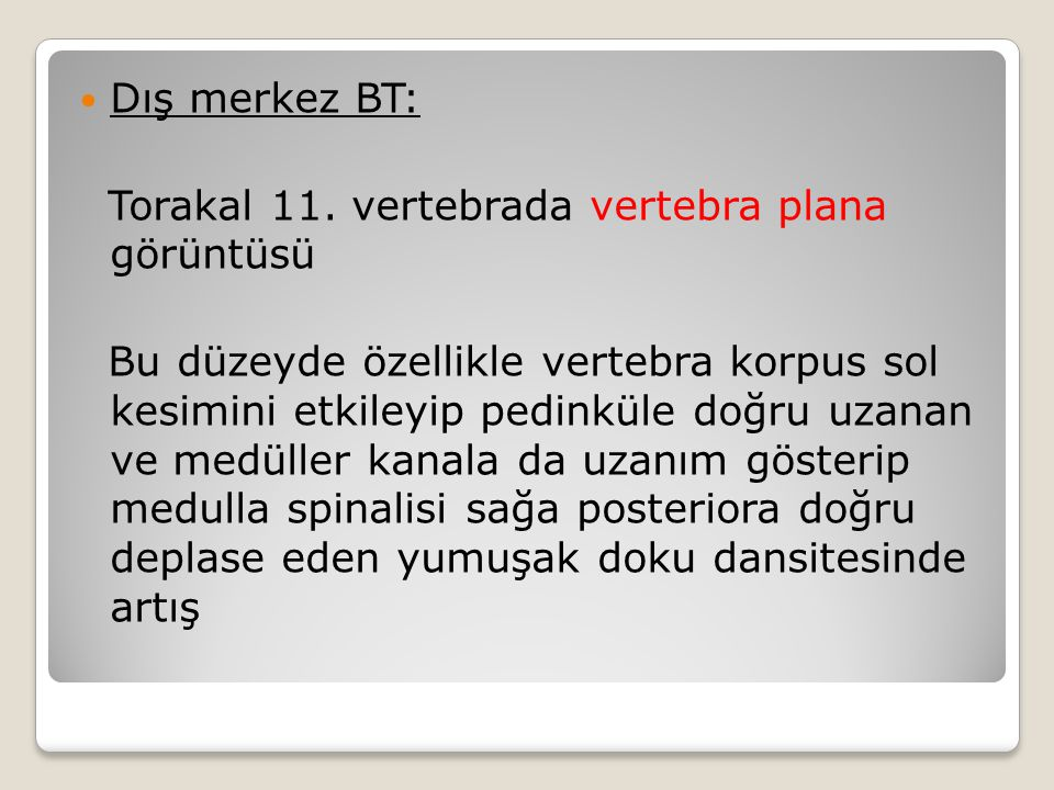 Dış merkez BT: Torakal 11.