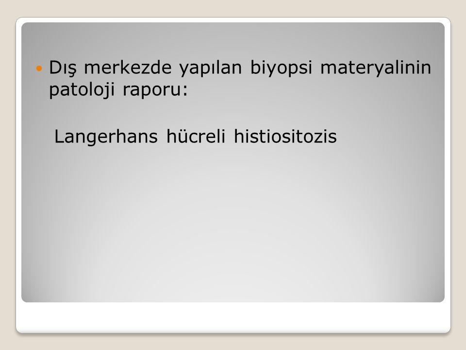 Dış merkezde yapılan biyopsi materyalinin patoloji raporu: Langerhans hücreli histiositozis