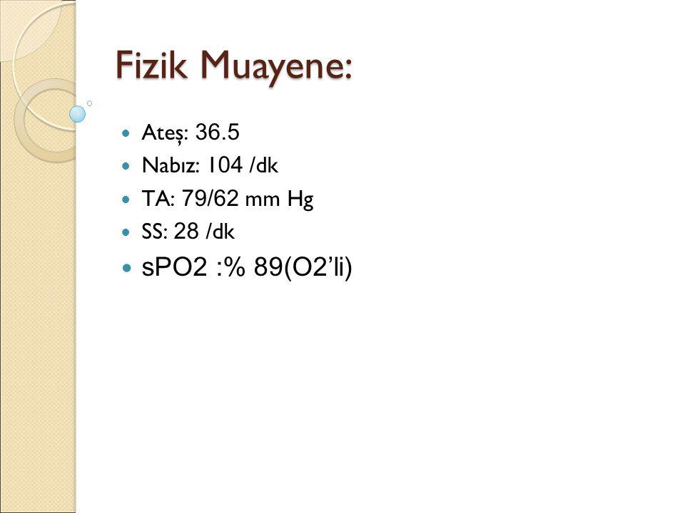 Fizik Muayene: Ateş: 36.5 Nabız: 1 04 /dk TA: 79/62 mm Hg SS: 28 /dk sPO2 :% 89(O2'li)