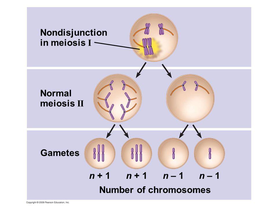 Nondisjunction in meiosis I Normal meiosis II n + 1 Gametes Number of chromosomes n + 1n – 1