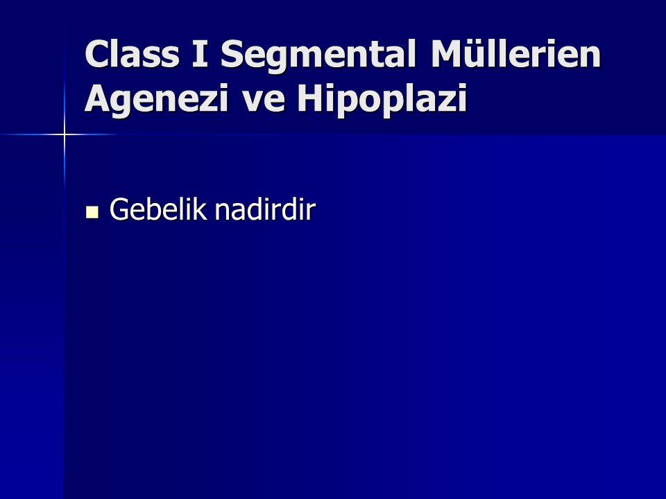Class I Segmental Müllerien Agenezi ve Hipoplazi Gebelik nadirdir Gebelik nadirdir