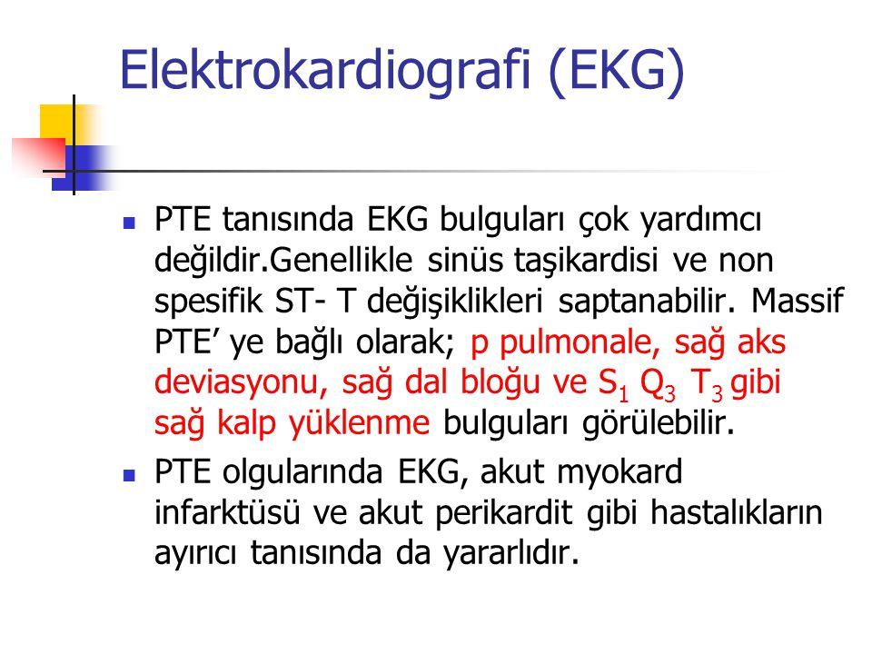 Elektrokardiografi (EKG) PTE tanısında EKG bulguları çok yardımcı değildir.Genellikle sinüs taşikardisi ve non spesifik ST- T değişiklikleri saptanabilir.