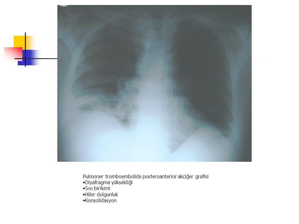 Pulmoner tromboembolide posteroanterior akciğer grafisi Diyafragma yüksekliği Sıvı birikimi Hiler dolgunluk Konsolidasyon
