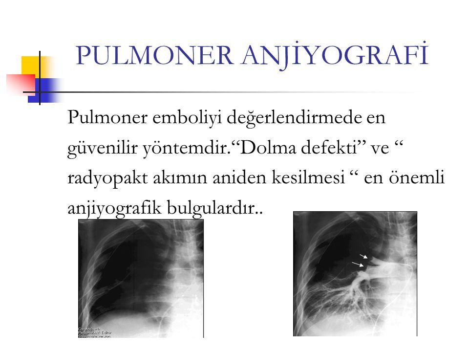 PULMONER ANJİYOGRAFİ Pulmoner emboliyi değerlendirmede en güvenilir yöntemdir. Dolma defekti ve radyopakt akımın aniden kesilmesi en önemli anjiyografik bulgulardır..