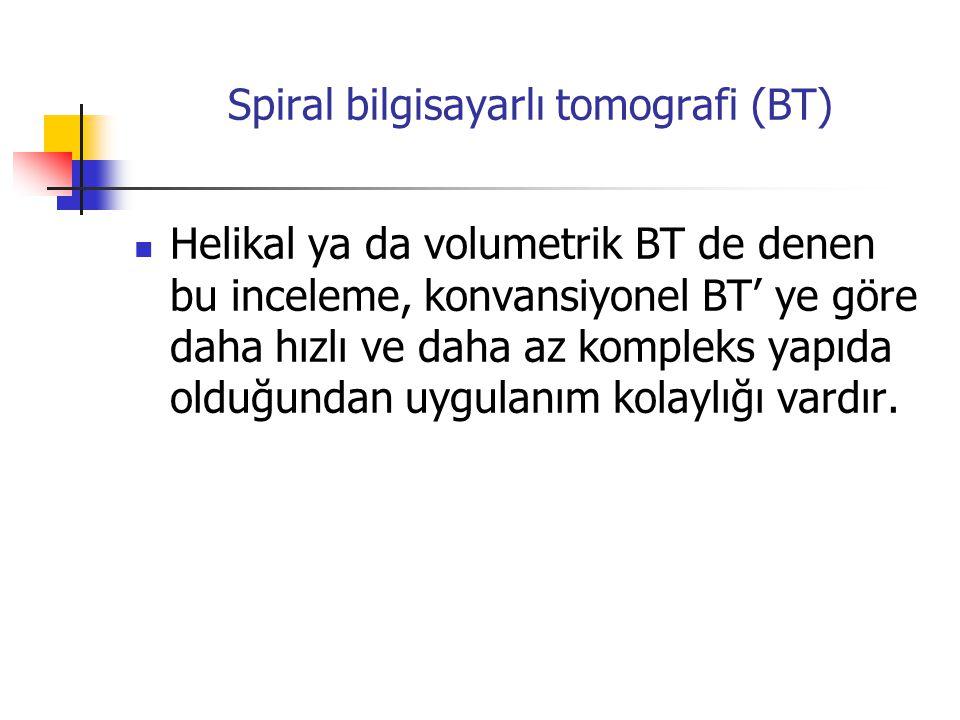 Spiral bilgisayarlı tomografi (BT) Helikal ya da volumetrik BT de denen bu inceleme, konvansiyonel BT' ye göre daha hızlı ve daha az kompleks yapıda olduğundan uygulanım kolaylığı vardır.