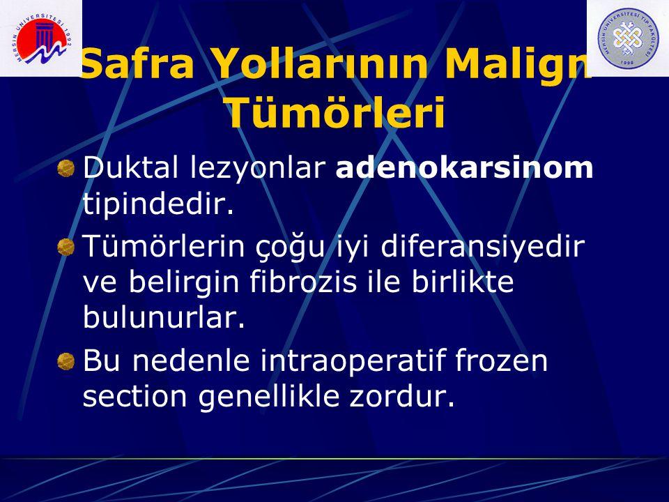Safra Yollarının Malign Tümörleri Duktal lezyonlar adenokarsinom tipindedir. Tümörlerin çoğu iyi diferansiyedir ve belirgin fibrozis ile birlikte bulu