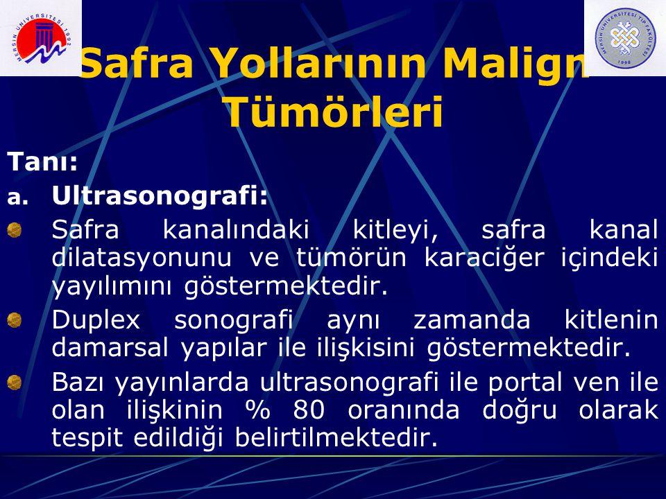 Safra Yollarının Malign Tümörleri Tanı: a. Ultrasonografi: Safra kanalındaki kitleyi, safra kanal dilatasyonunu ve tümörün karaciğer içindeki yayılımı