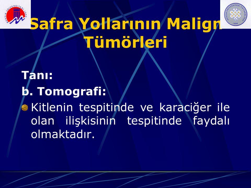 Safra Yollarının Malign Tümörleri Tanı: b. Tomografi: Kitlenin tespitinde ve karaciğer ile olan ilişkisinin tespitinde faydalı olmaktadır.