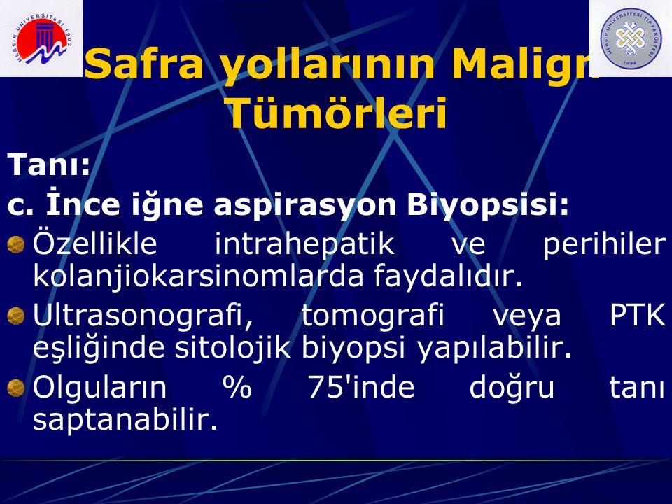 Safra yollarının Malign Tümörleri Tanı: c. İnce iğne aspirasyon Biyopsisi: Özellikle intrahepatik ve perihiler kolanjiokarsinomlarda faydalıdır. Ultra