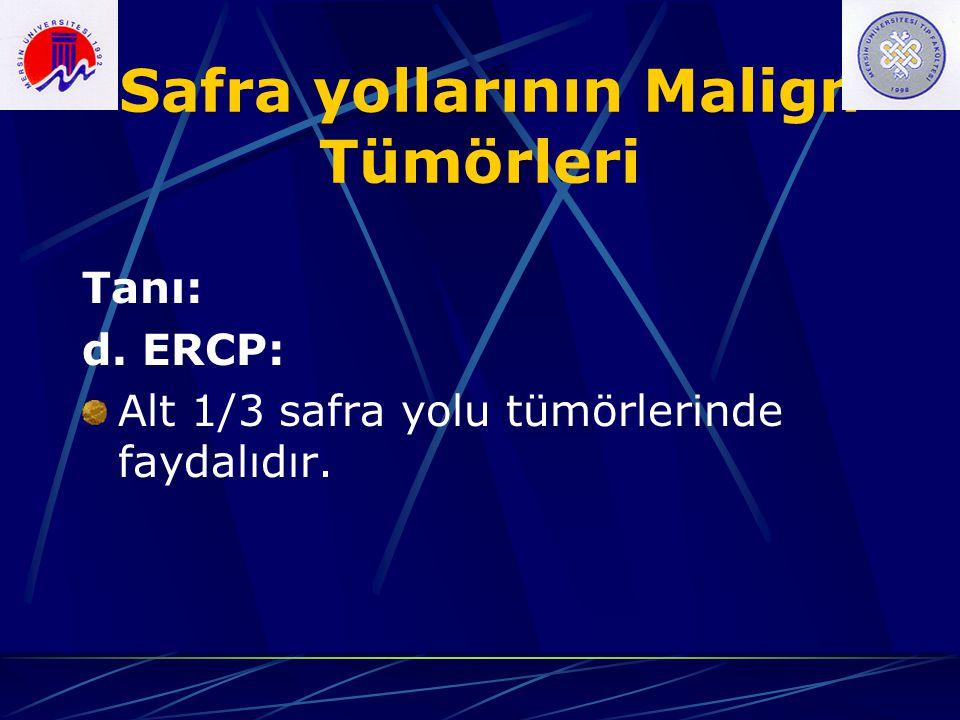 Safra yollarının Malign Tümörleri Tanı: d. ERCP: Alt 1/3 safra yolu tümörlerinde faydalıdır.