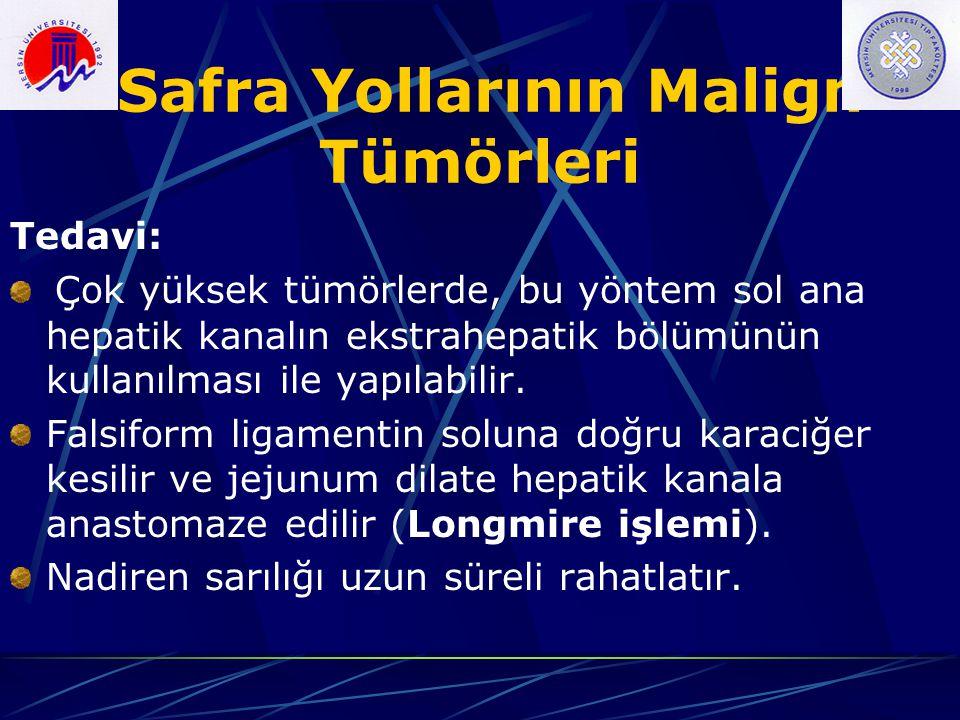Safra Yollarının Malign Tümörleri Tedavi: Çok yüksek tümörlerde, bu yöntem sol ana hepatik kanalın ekstrahepatik bölümünün kullanılması ile yapılabili