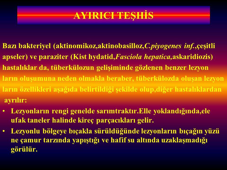 AYIRICI TEŞHİS Bazı bakteriyel (aktinomikoz,aktinobasilloz,C.piyogenes inf.,çeşitli apseler) ve paraziter (Kist hydatid,Fasciola hepatica,askaridiozis