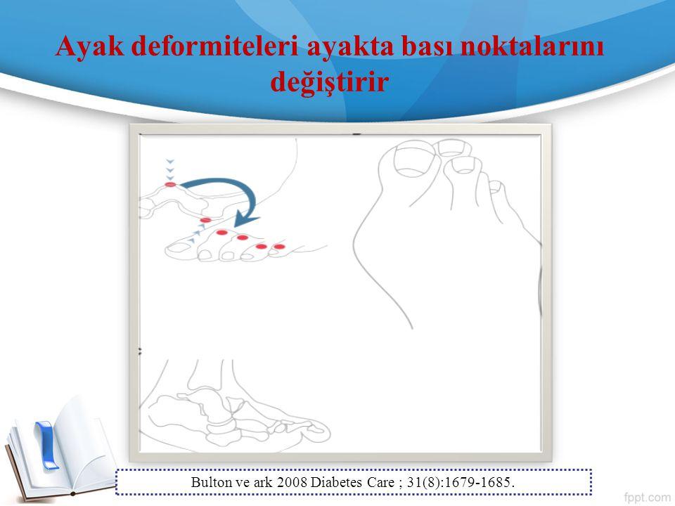 Ayak deformiteleri ayakta bası noktalarını değiştirir Bulton ve ark 2008 Diabetes Care ; 31(8):1679-1685.