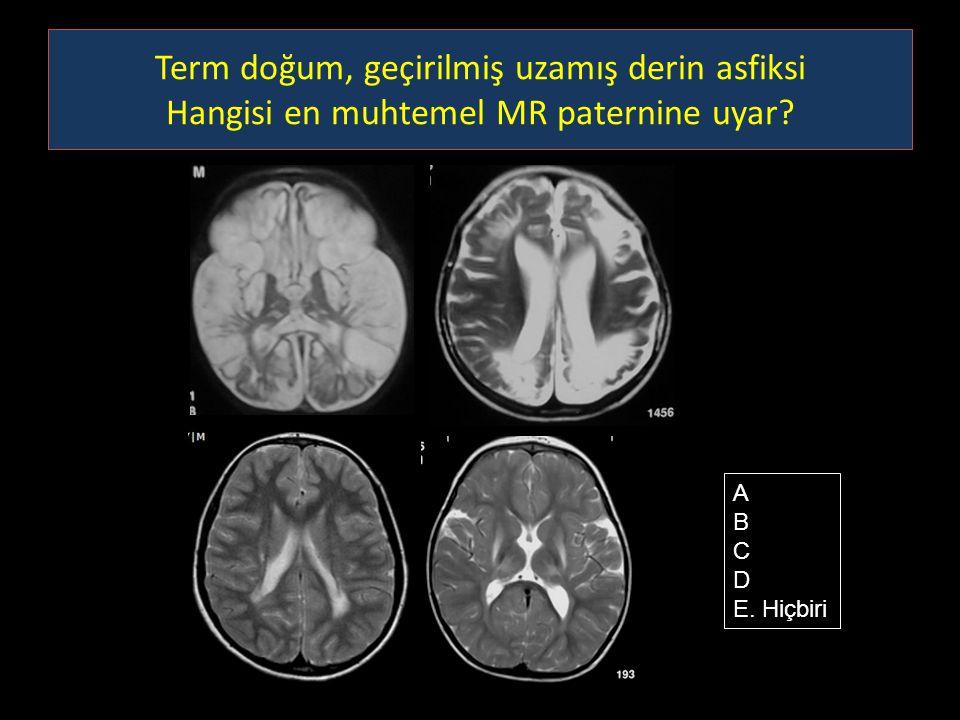 Term doğum, geçirilmiş uzamış derin asfiksi Hangisi en muhtemel MR paternine uyar? A B C D E. Hiçbiri