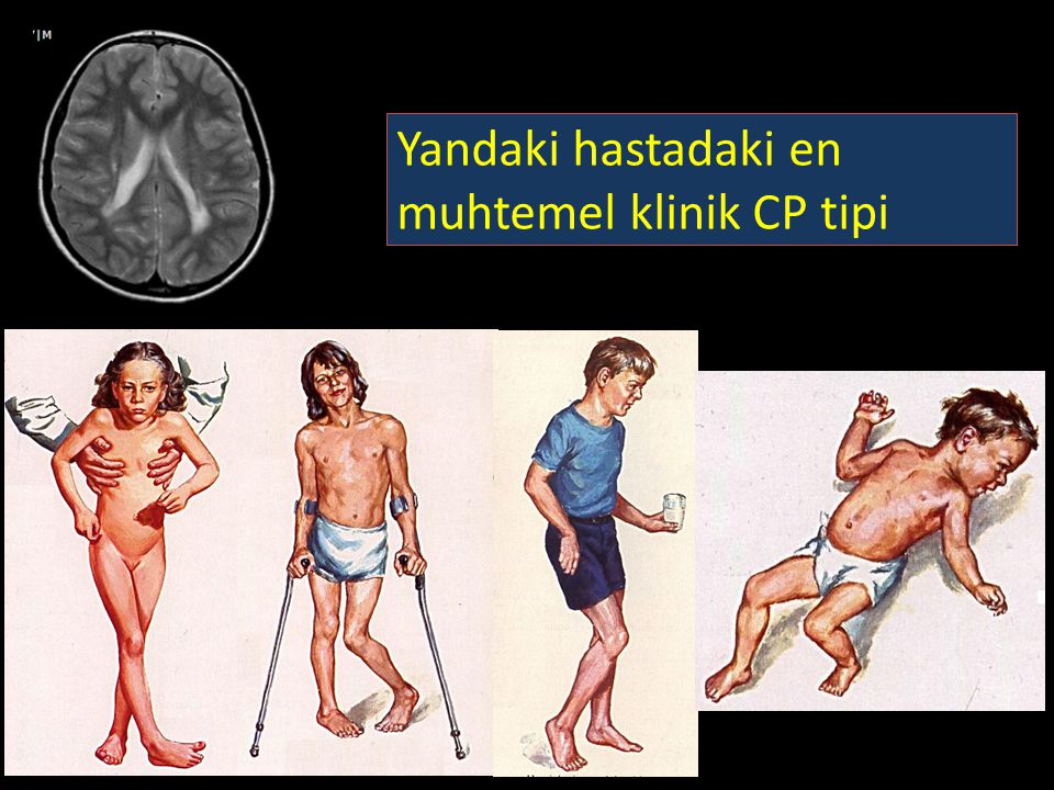 Yandaki hastadaki en muhtemel klinik CP tipi