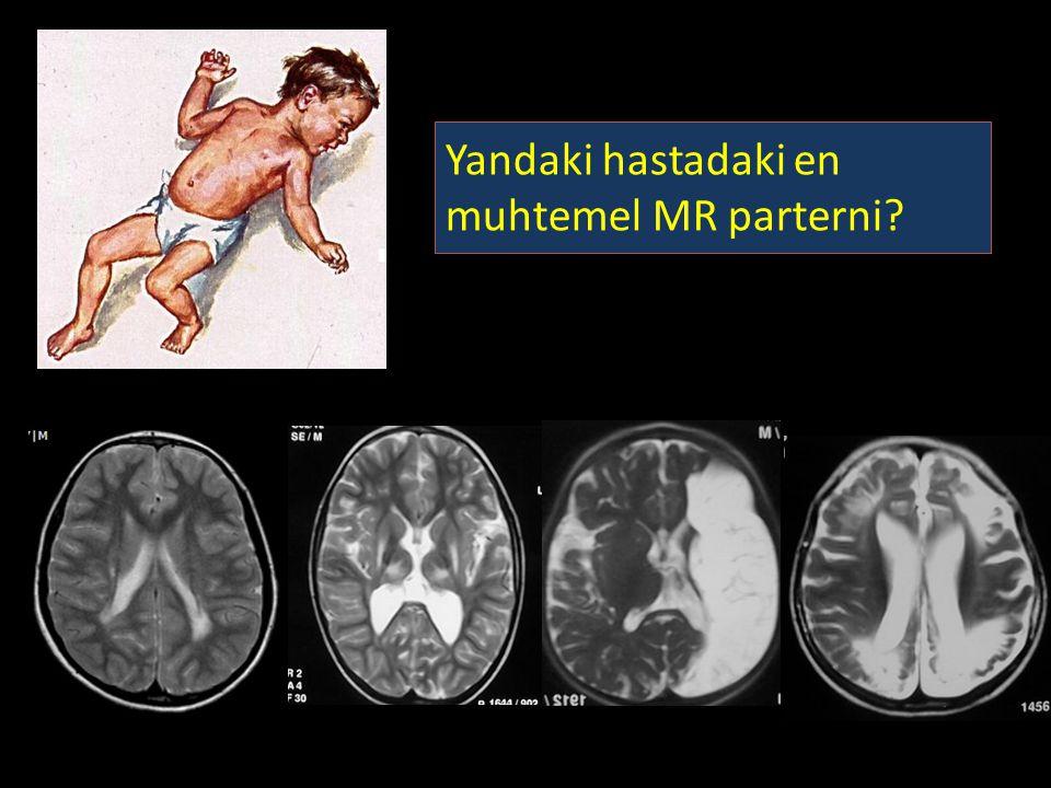 Yandaki hastadaki en muhtemel MR parterni?