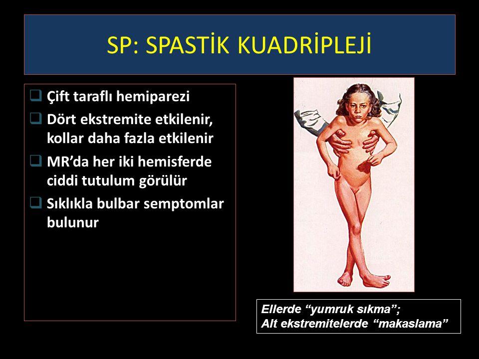 SP: SPASTİK KUADRİPLEJİ  Çift taraflı hemiparezi  Dört ekstremite etkilenir, kollar daha fazla etkilenir  MR'da her iki hemisferde ciddi tutulum gö