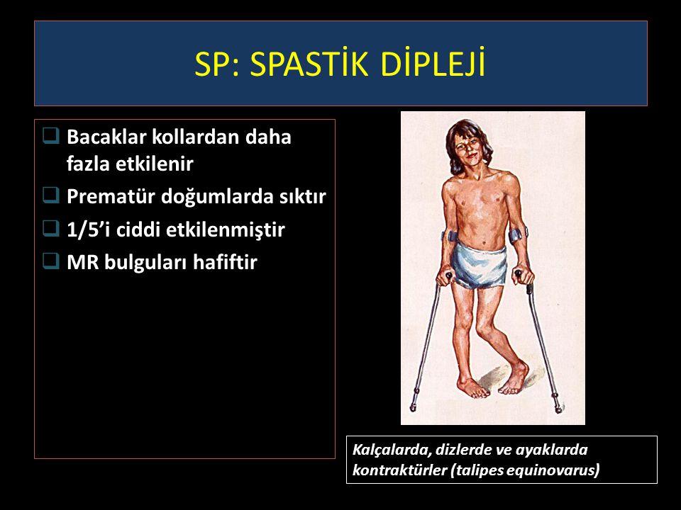 SP: SPASTİK DİPLEJİ  Bacaklar kollardan daha fazla etkilenir  Prematür doğumlarda sıktır  1/5'i ciddi etkilenmiştir  MR bulguları hafiftir Kalçala