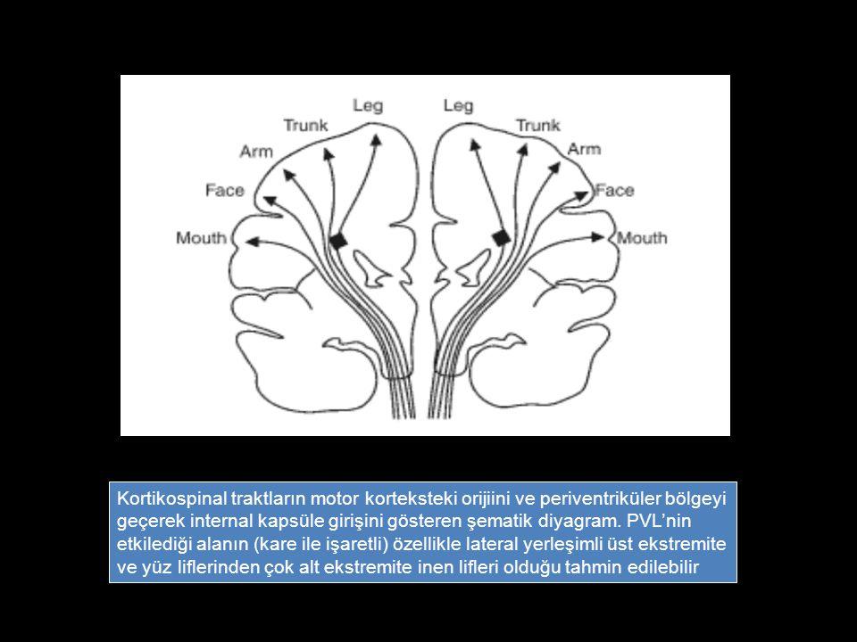 Kortikospinal traktların motor korteksteki orijiini ve periventriküler bölgeyi geçerek internal kapsüle girişini gösteren şematik diyagram. PVL'nin et