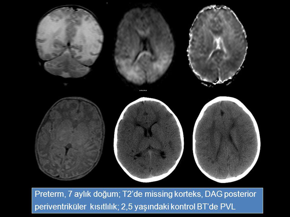 Preterm, 7 aylık doğum; T2'de missing korteks, DAG posterior periventriküler kısıtlılık; 2,5 yaşındaki kontrol BT'de PVL