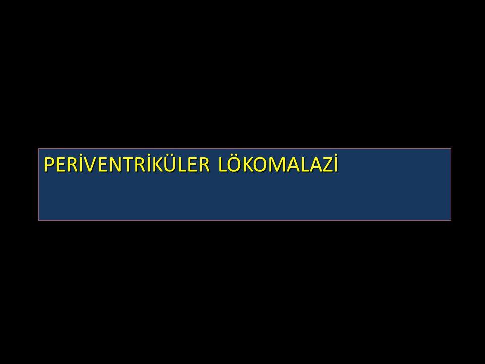PERİVENTRİKÜLER LÖKOMALAZİ