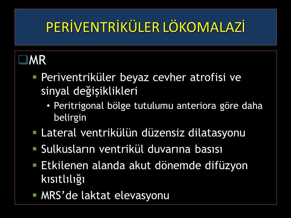  MR  Periventriküler beyaz cevher atrofisi ve sinyal değişiklikleri Peritrigonal bölge tutulumu anteriora göre daha belirgin  Lateral ventrikülün d