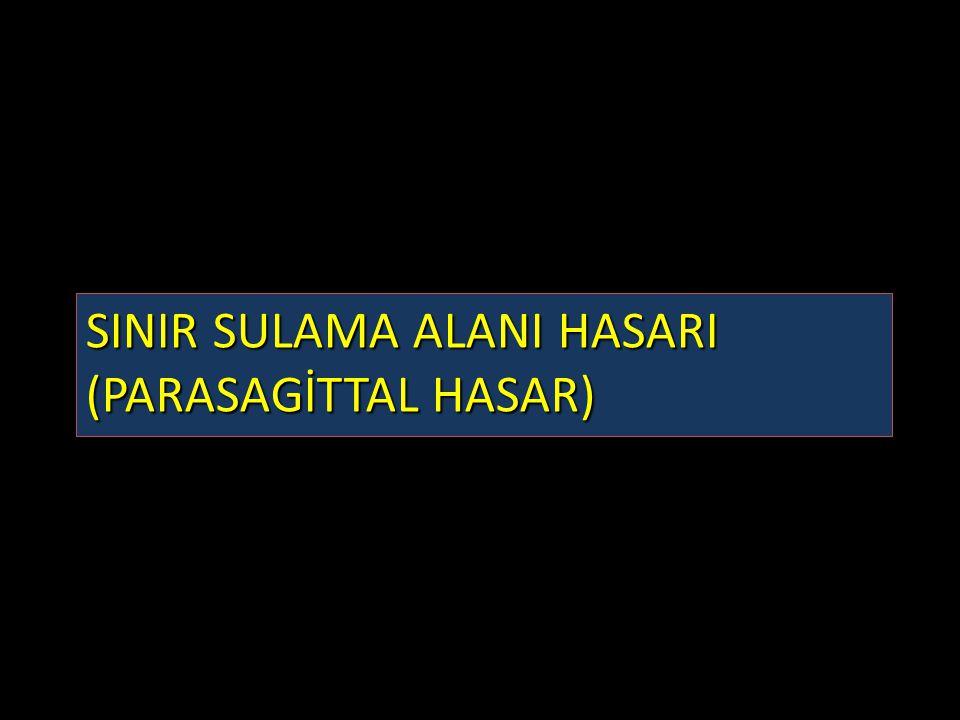 SINIR SULAMA ALANI HASARI (PARASAGİTTAL HASAR)