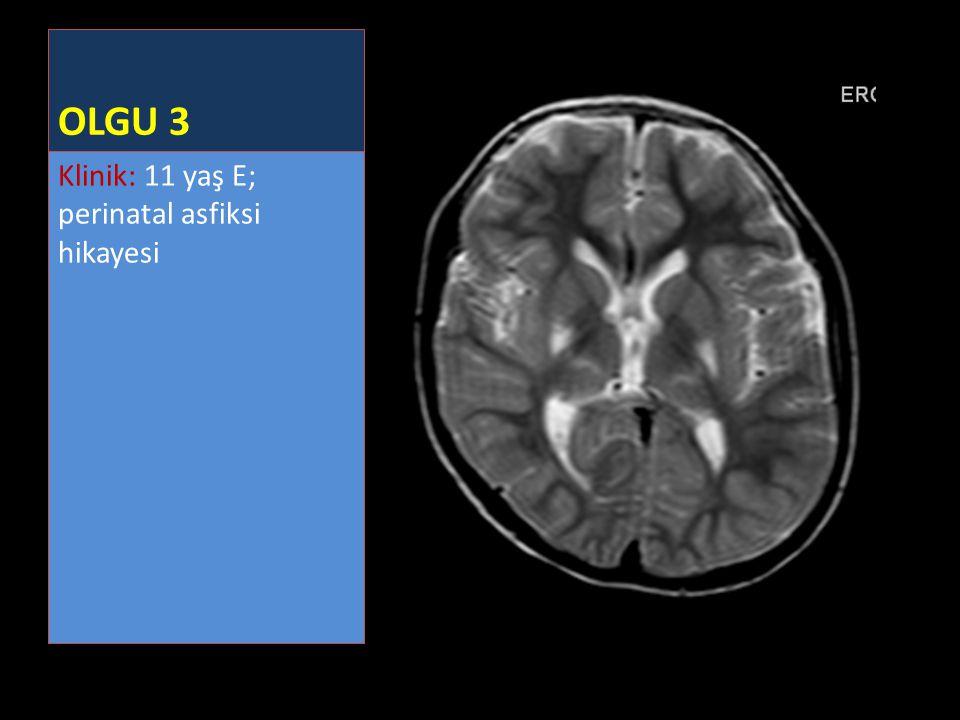 OLGU 3 Klinik: 11 yaş E; perinatal asfiksi hikayesi