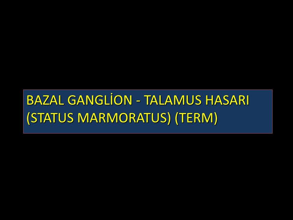 BAZAL GANGLİON - TALAMUS HASARI (STATUS MARMORATUS) (TERM)