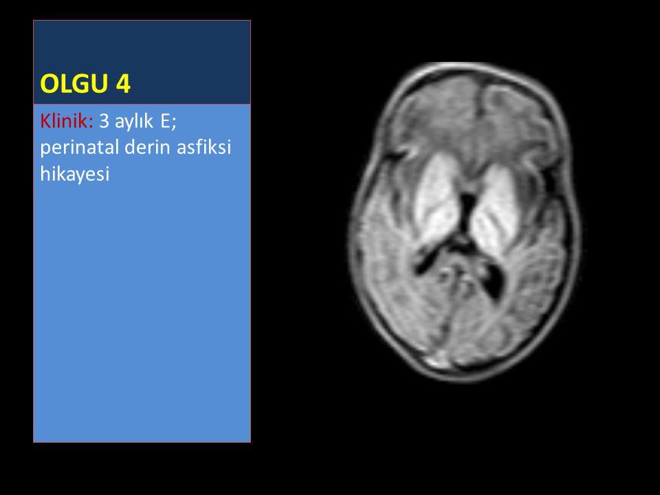 OLGU 4 Klinik: 3 aylık E; perinatal derin asfiksi hikayesi