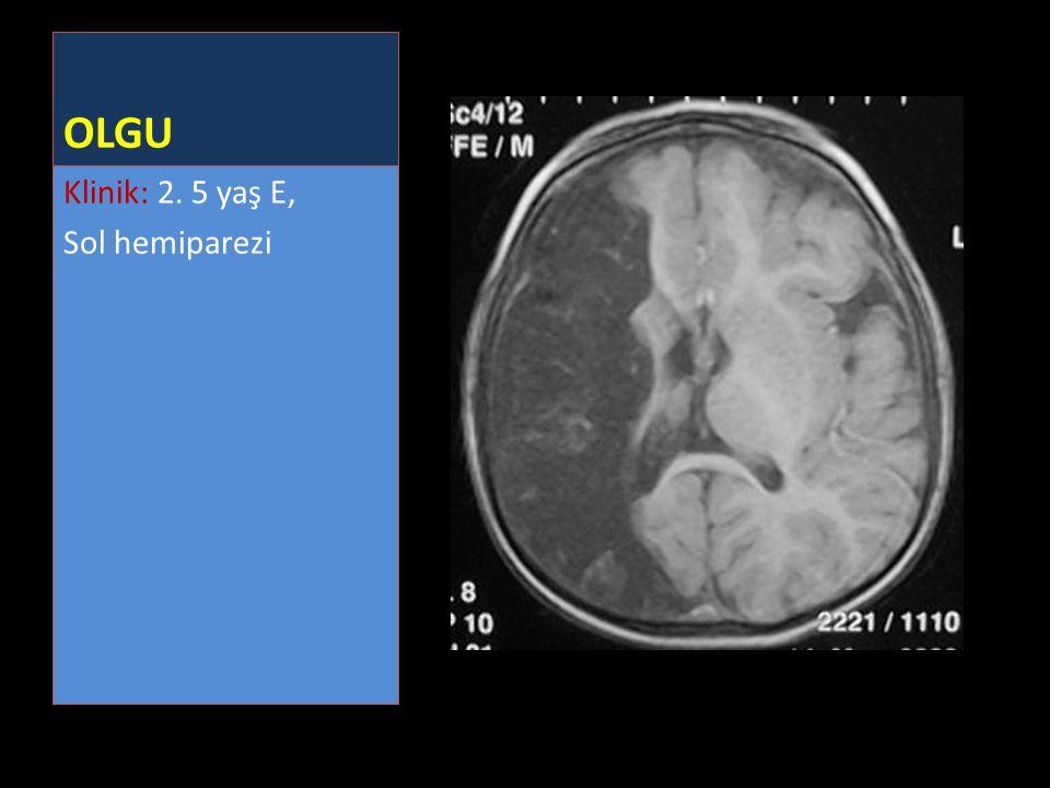 OLGU Klinik: 2. 5 yaş E, Sol hemiparezi