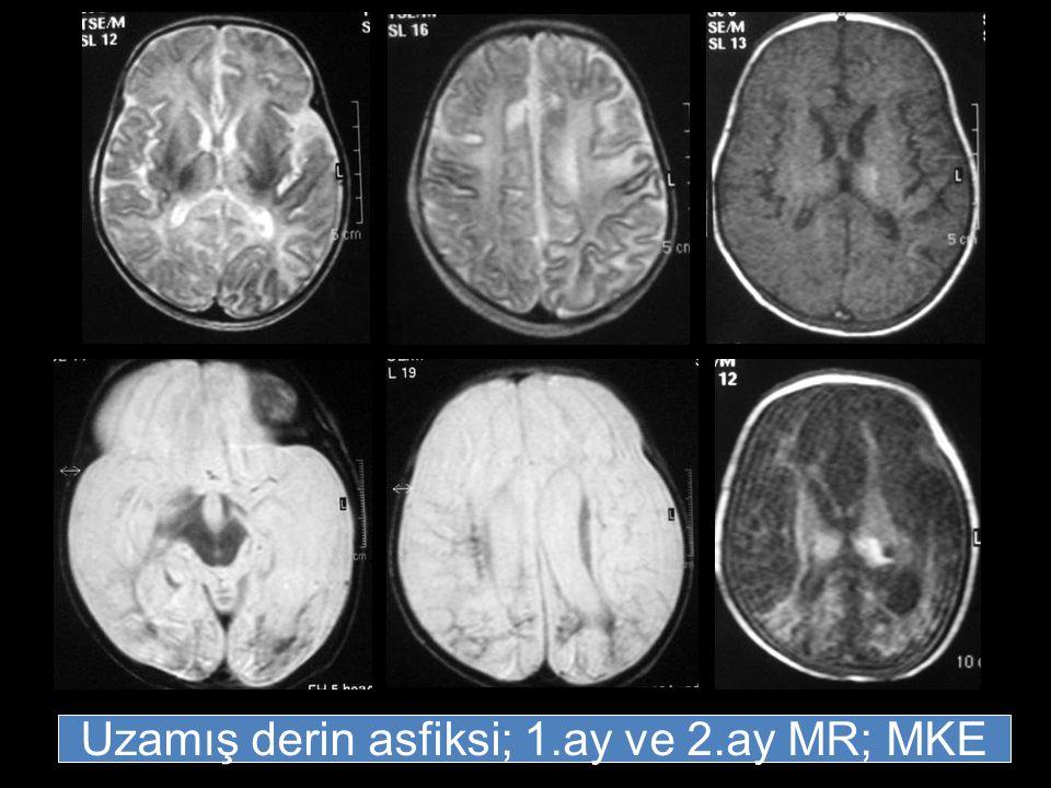Uzamış derin asfiksi; 1.ay ve 2.ay MR; MKE