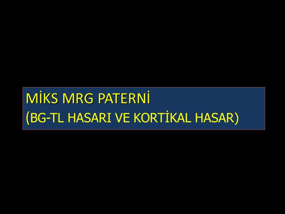MİKS MRG PATERNİ ( MİKS MRG PATERNİ ( BG-TL HASARI VE KORTİKAL HASAR)
