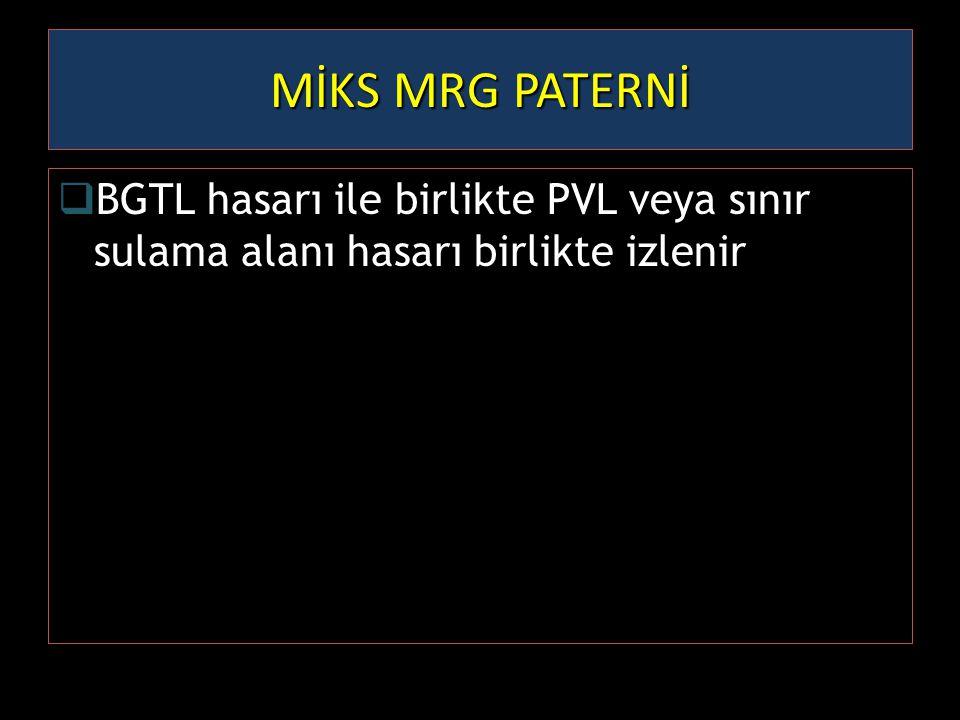 MİKS MRG PATERNİ  BGTL hasarı ile birlikte PVL veya sınır sulama alanı hasarı birlikte izlenir
