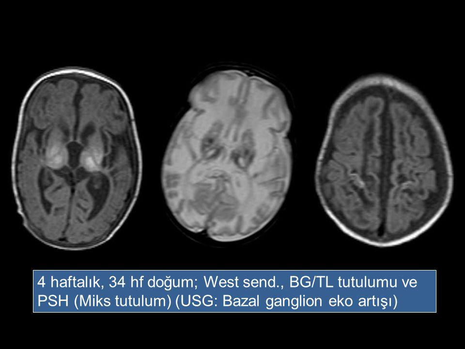 4 haftalık, 34 hf doğum; West send., BG/TL tutulumu ve PSH (Miks tutulum) (USG: Bazal ganglion eko artışı)