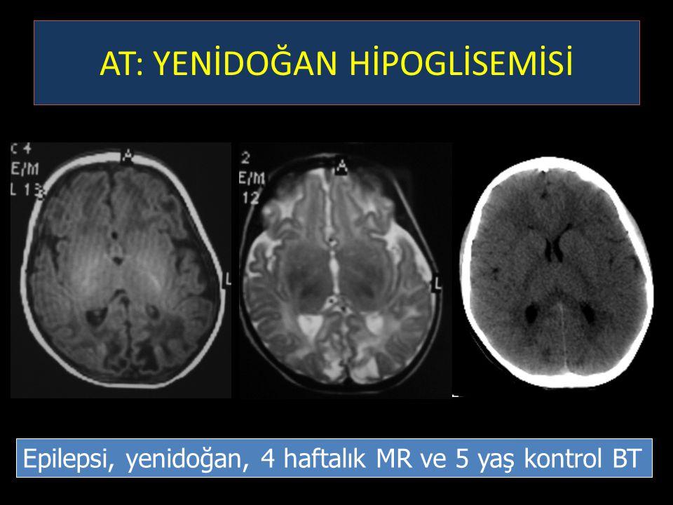 Epilepsi, yenidoğan, 4 haftalık MR ve 5 yaş kontrol BT AT: YENİDOĞAN HİPOGLİSEMİSİ
