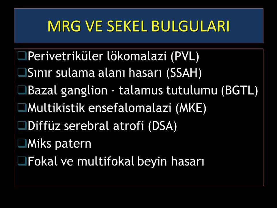 MRG VE SEKEL BULGULARI  Perivetriküler lökomalazi (PVL)  Sınır sulama alanı hasarı (SSAH)  Bazal ganglion - talamus tutulumu (BGTL)  Multikistik e