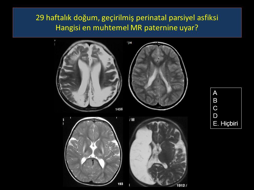29 haftalık doğum, geçirilmiş perinatal parsiyel asfiksi Hangisi en muhtemel MR paternine uyar? A B C D E. Hiçbiri