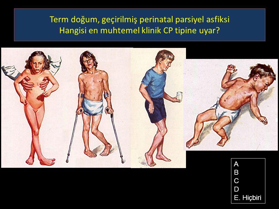 Term doğum, geçirilmiş perinatal parsiyel asfiksi Hangisi en muhtemel klinik CP tipine uyar? A B C D E. Hiçbiri