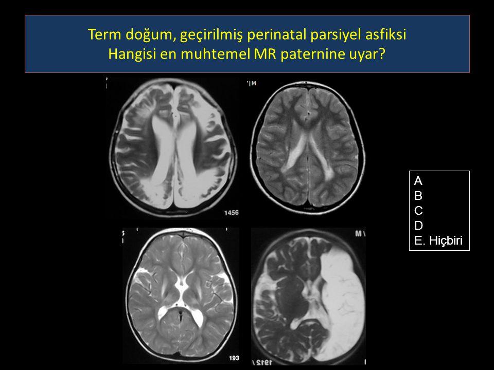 Term doğum, geçirilmiş perinatal parsiyel asfiksi Hangisi en muhtemel MR paternine uyar? A B C D E. Hiçbiri