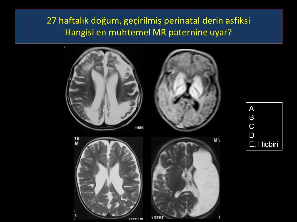 27 haftalık doğum, geçirilmiş perinatal derin asfiksi Hangisi en muhtemel MR paternine uyar? A B C D E. Hiçbiri