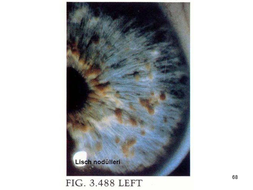 genetik hastalıklar 200668 Lisch nodülleri