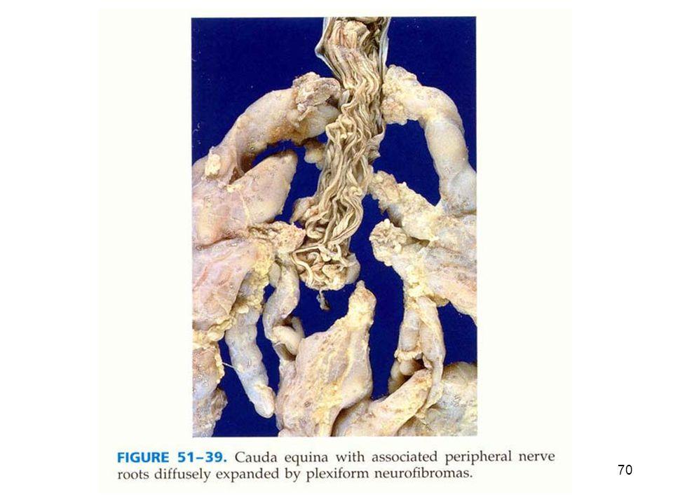 genetik hastalıklar 200670
