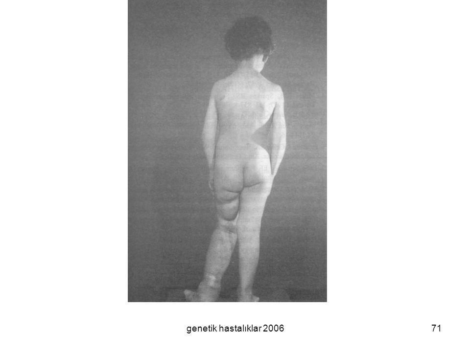 genetik hastalıklar 200671