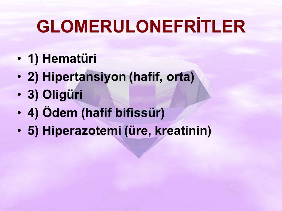 GLOMERULONEFRİTLER 1) Hematüri 2) Hipertansiyon (hafif, orta) 3) Oligüri 4) Ödem (hafif bifissür) 5) Hiperazotemi (üre, kreatinin)